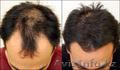 Kirkland 5% Minoxidil,  60мл. Для восстановления волос (Миноксидил)